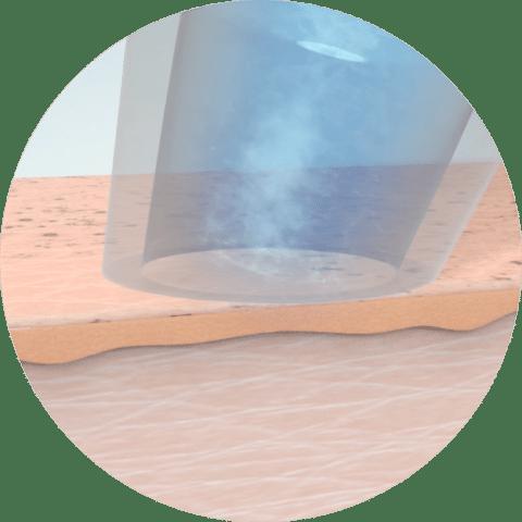 Aquafacial Phase 2 - Poren aufweichen