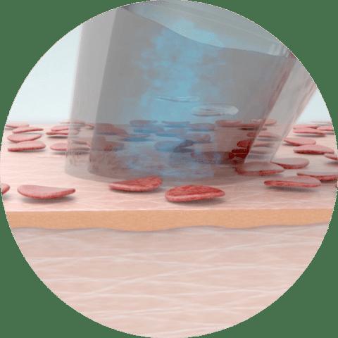 Aquafacial Phase 1 - Peeling