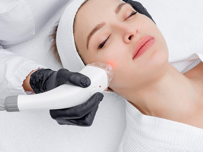Dauerhafte Haarentfernung mit Laser